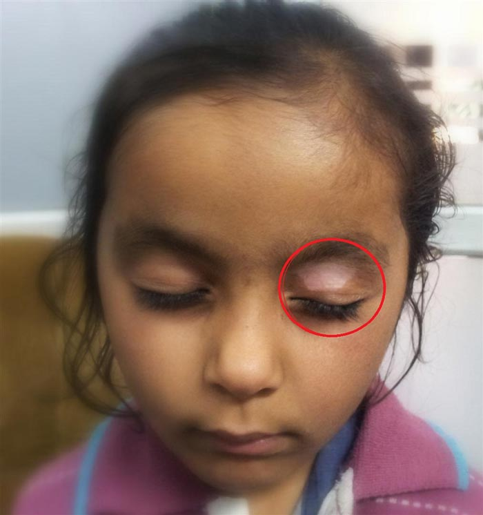 Vitiligo In A Four Year Old Girl Disappears With Homeopathy