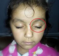 Vitiligo in a four year old girl, disappears with homeopathy