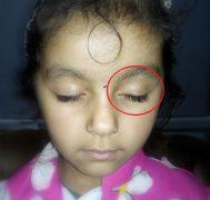 Number 6 vitiligo
